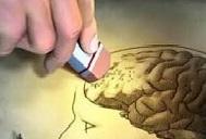 Enfermedad de Alzhéimer: Si usted tiene este síntoma, podría estar en el grupo de riesgo